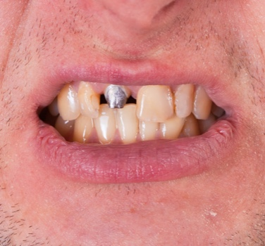 Image of teeth with one tooth missing, showing the root of the mising tooth